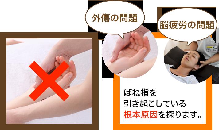 骨盤王国のばね指の施術
