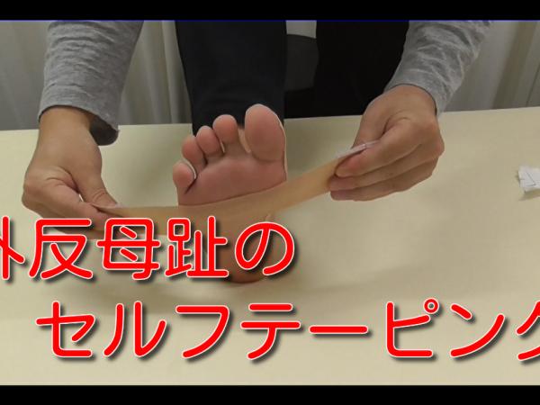 外反母趾のためのセルフテーピング